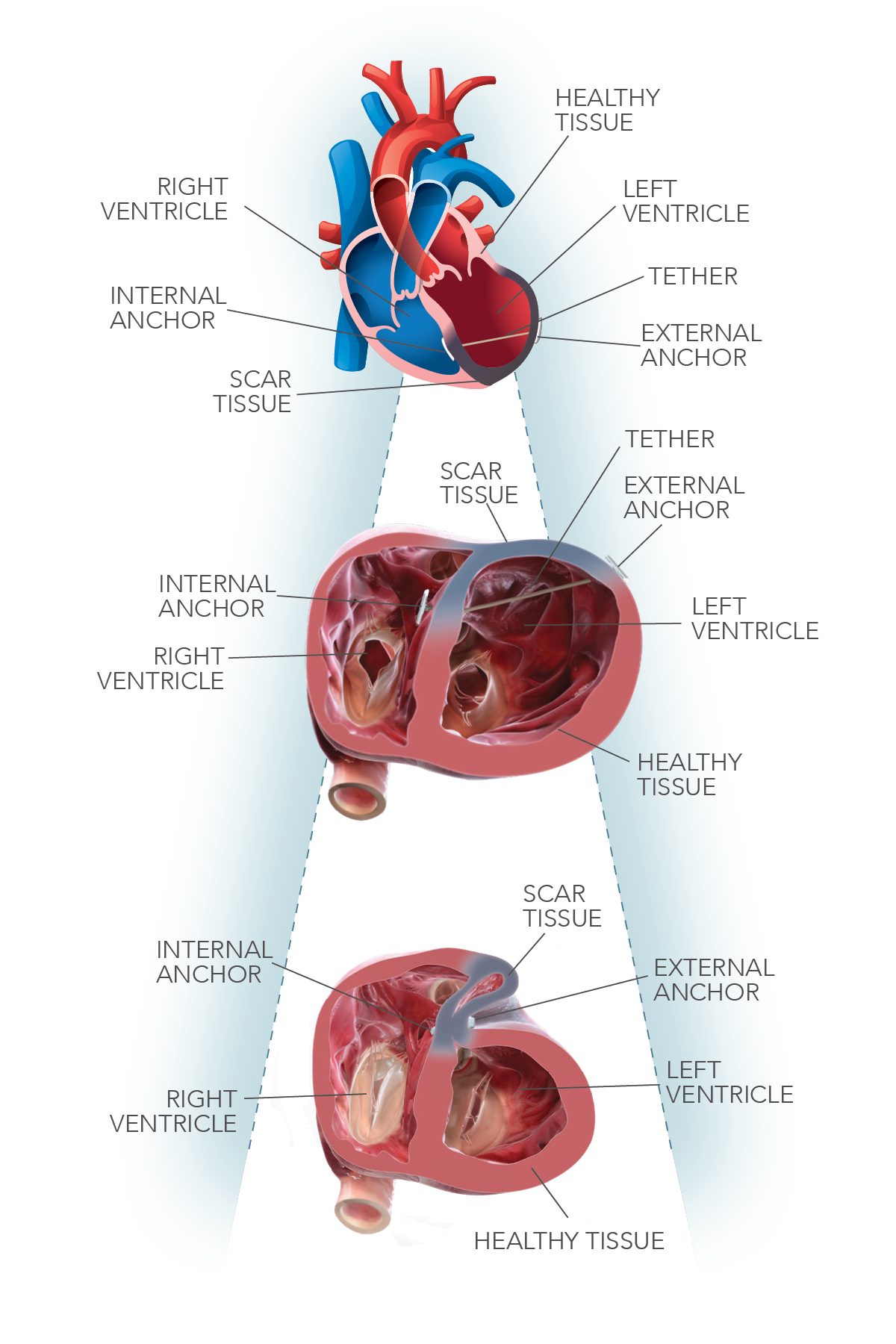 The LIVE™procedure uses the Revivent TC™ Transcatheter Ventricular Enhancement