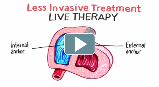 less-invasive-treatment-min.jpg